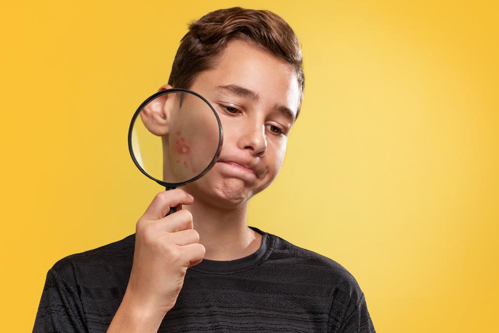Ter espinha é algo normal da adolescência, mas elas devem ser tratadas com especialista